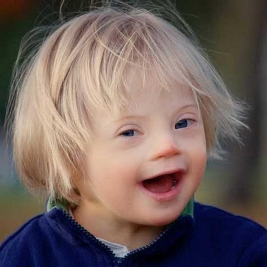 Синдром Дауна и аутизм отличие