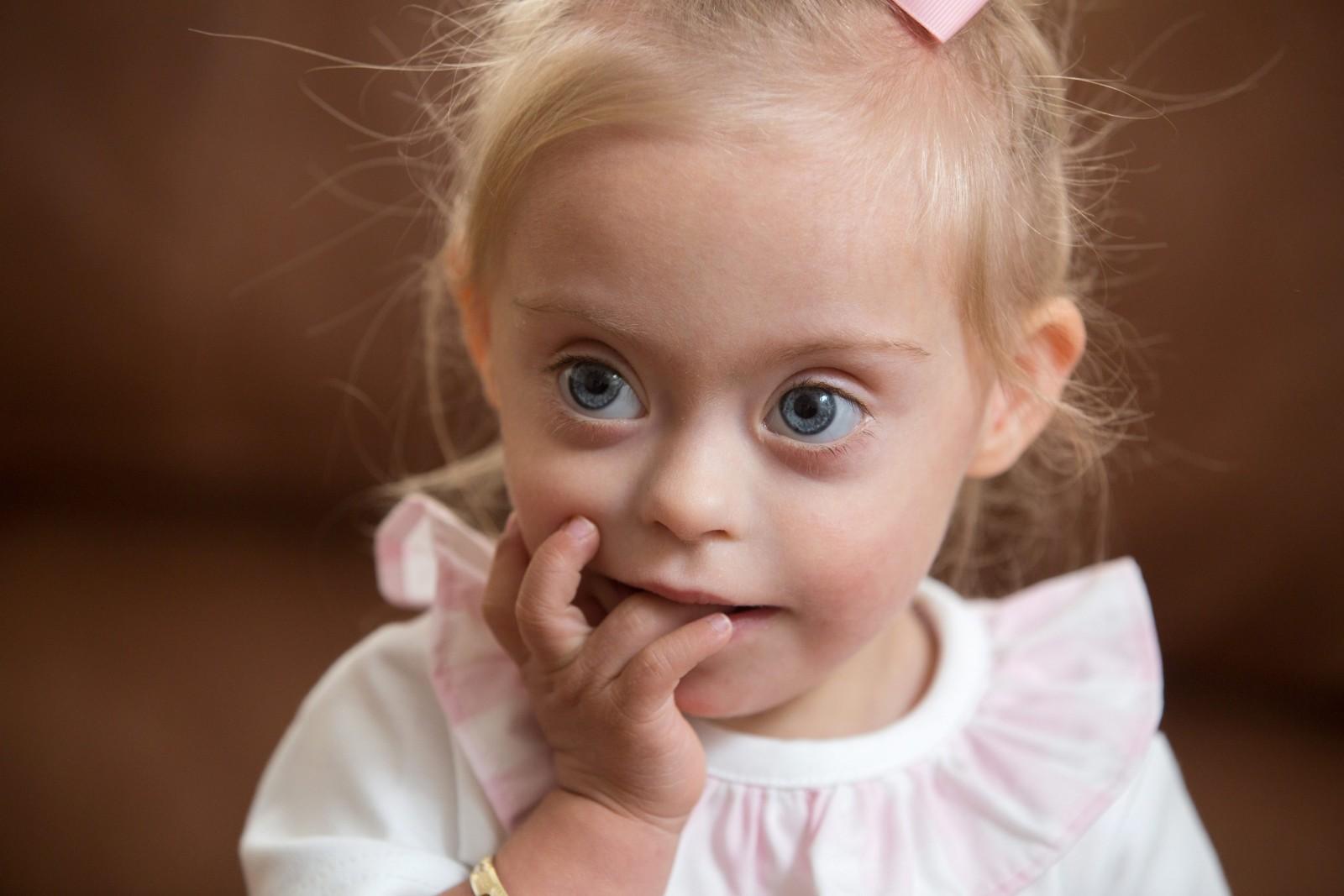 Детей с сочетанием аутизма и синдрома Дауна
